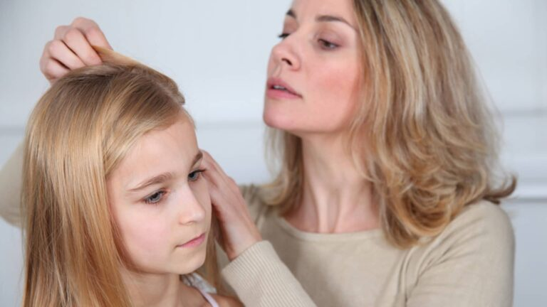 Can Rubbing Alcohol Kill Lice?